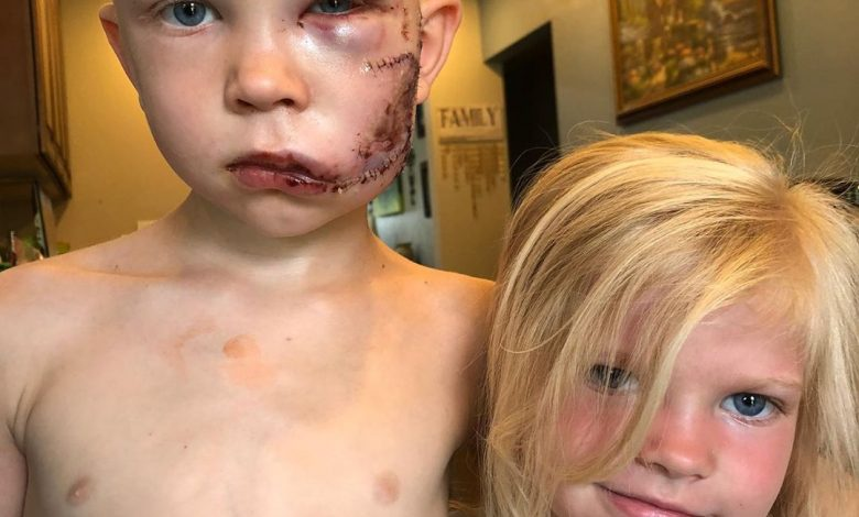 A boy gets badly wounded in the face while saving his little sister from a dog attack