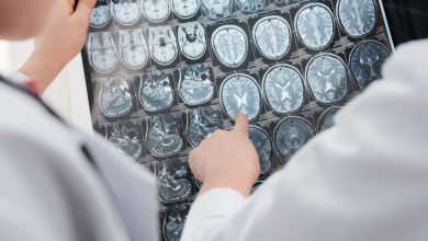 Photo of Can our brain age differ due to a Coronavirus infection?