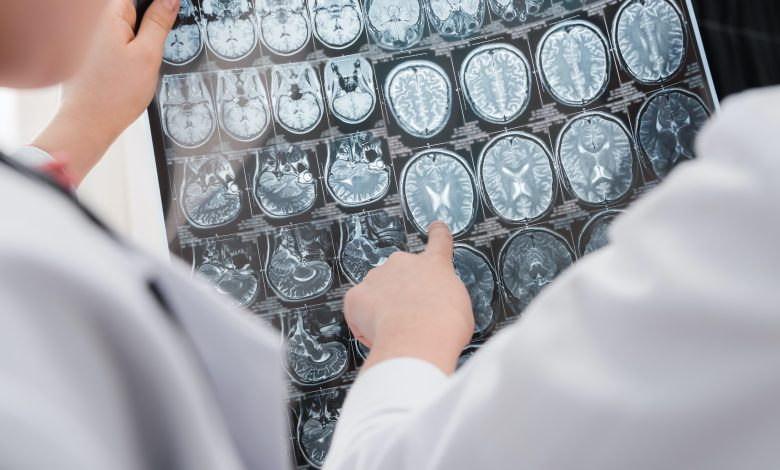 Can our brain age differ due to a Coronavirus infection?