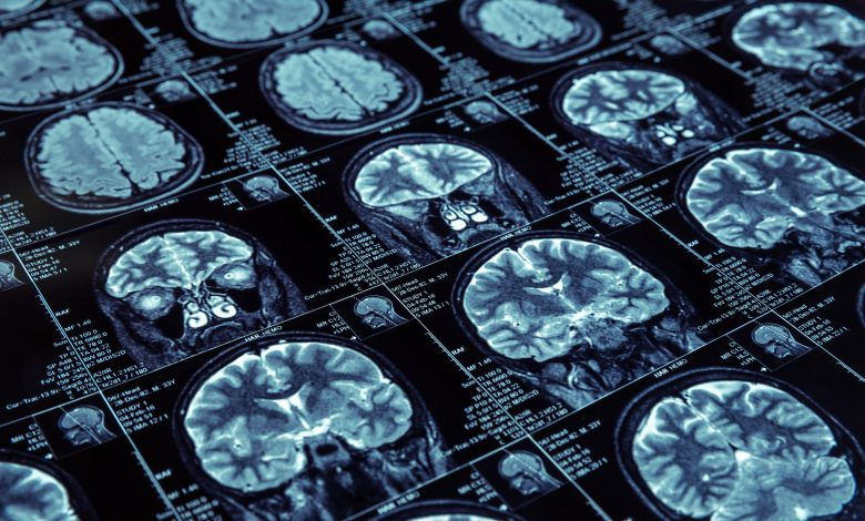 Scientists discover four types of Alzheimer's