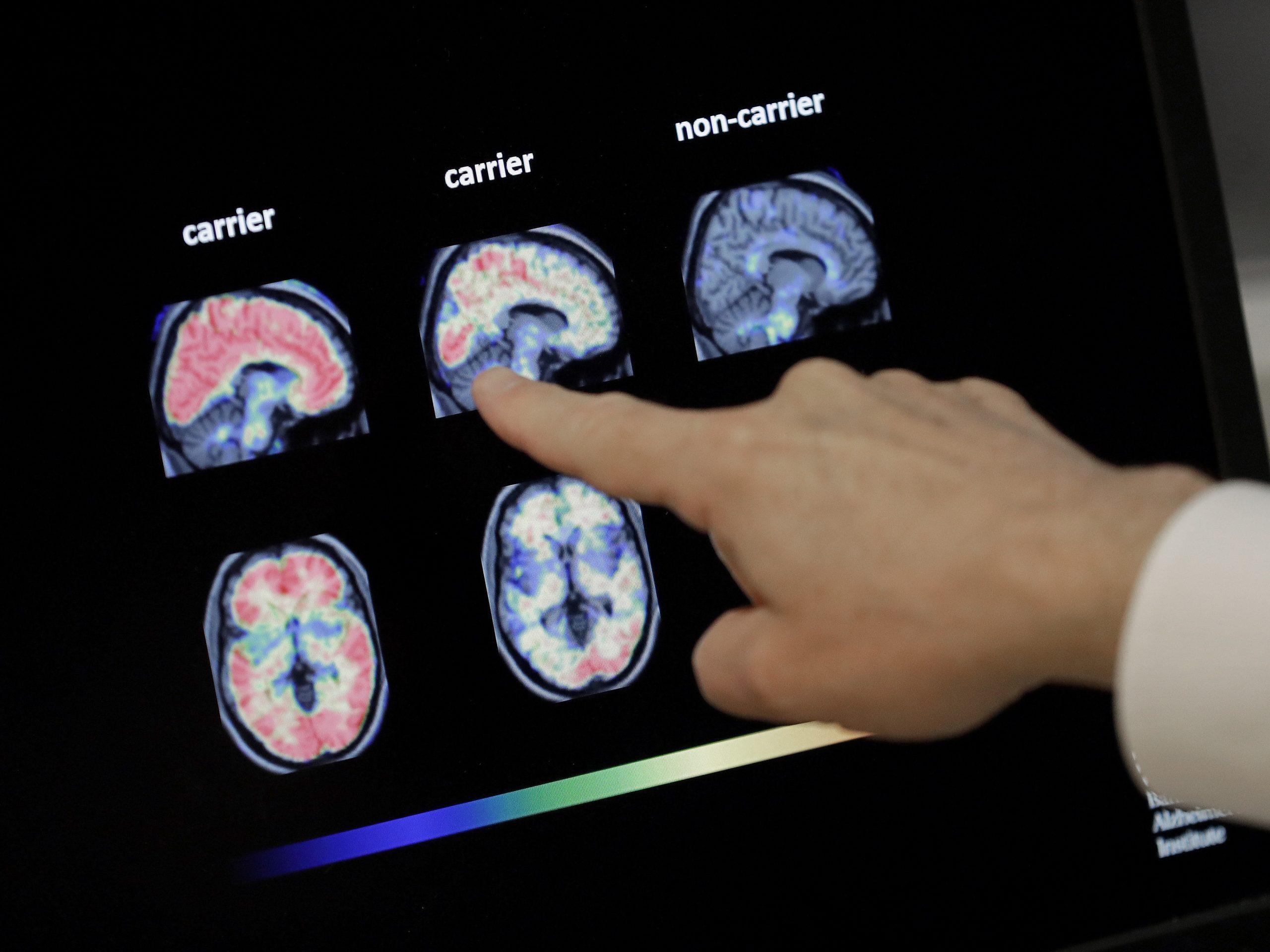 FDA Grants Accelerated Approval for Alzheimer's Drug
